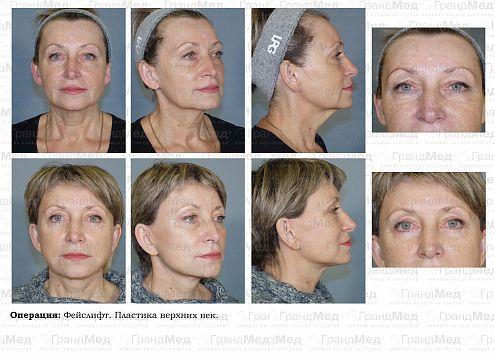 Виды пластических операций на лице