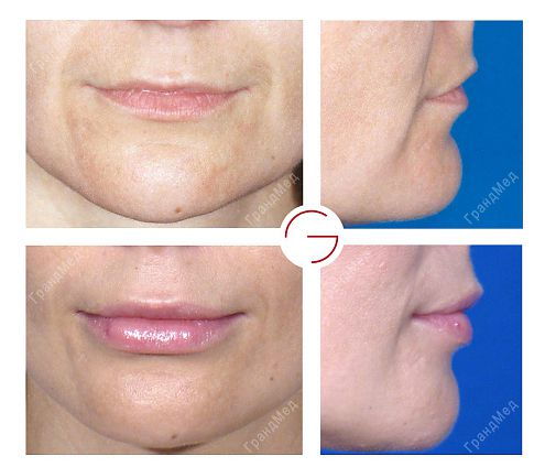 Пластическая операция малых губ