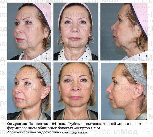 Подтяжка лица операция отзывы
